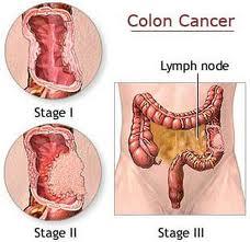 Obat Tradisional Kanker Usus